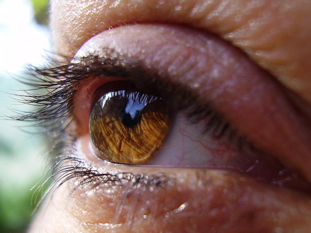El remedios perrillas en caseros ojo para